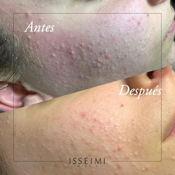Antes y después Isséimi cosmética profesional